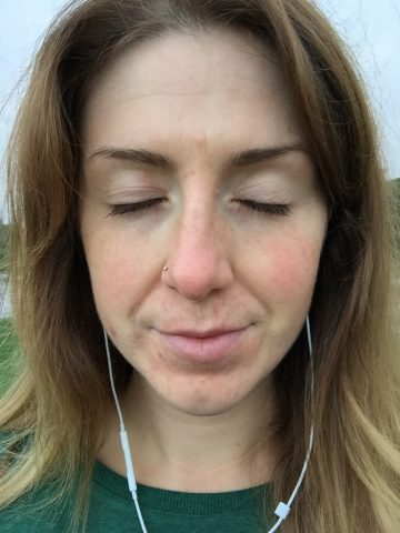 Perioral Dermatitis Symptoms and Treatments - Mama Nature