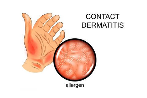 contact dermatitis image of hand